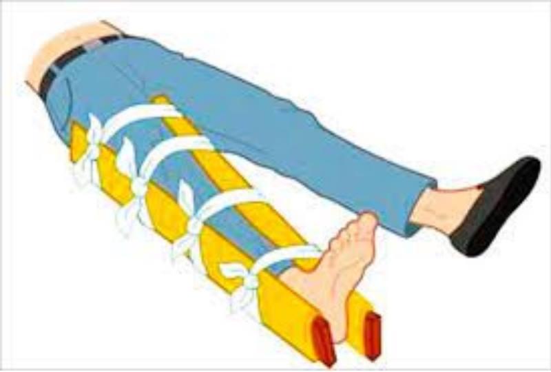 шина на ноге