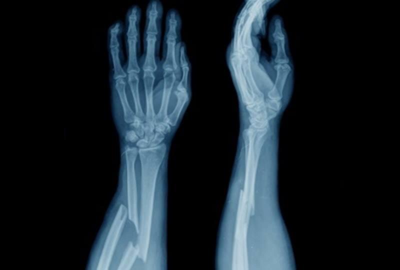 рентген руи