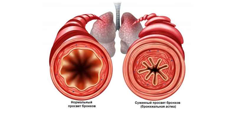 заболевания сердца и органов дыхания;